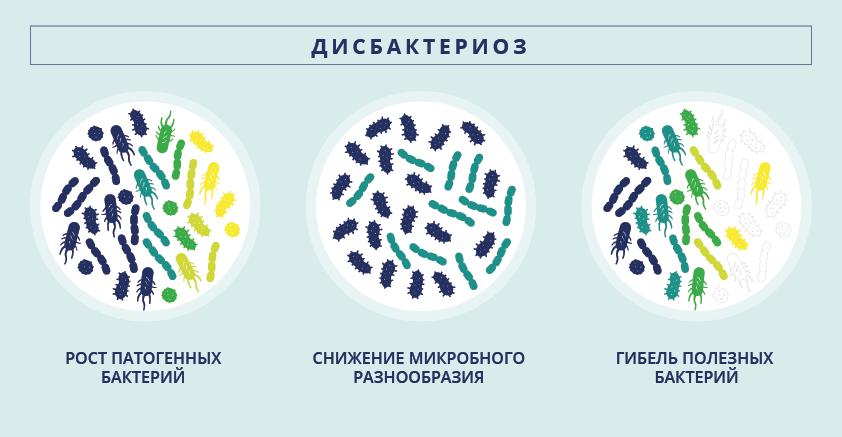 Различные типы дисбаланса микрофлоры приводят к дисбактериозу